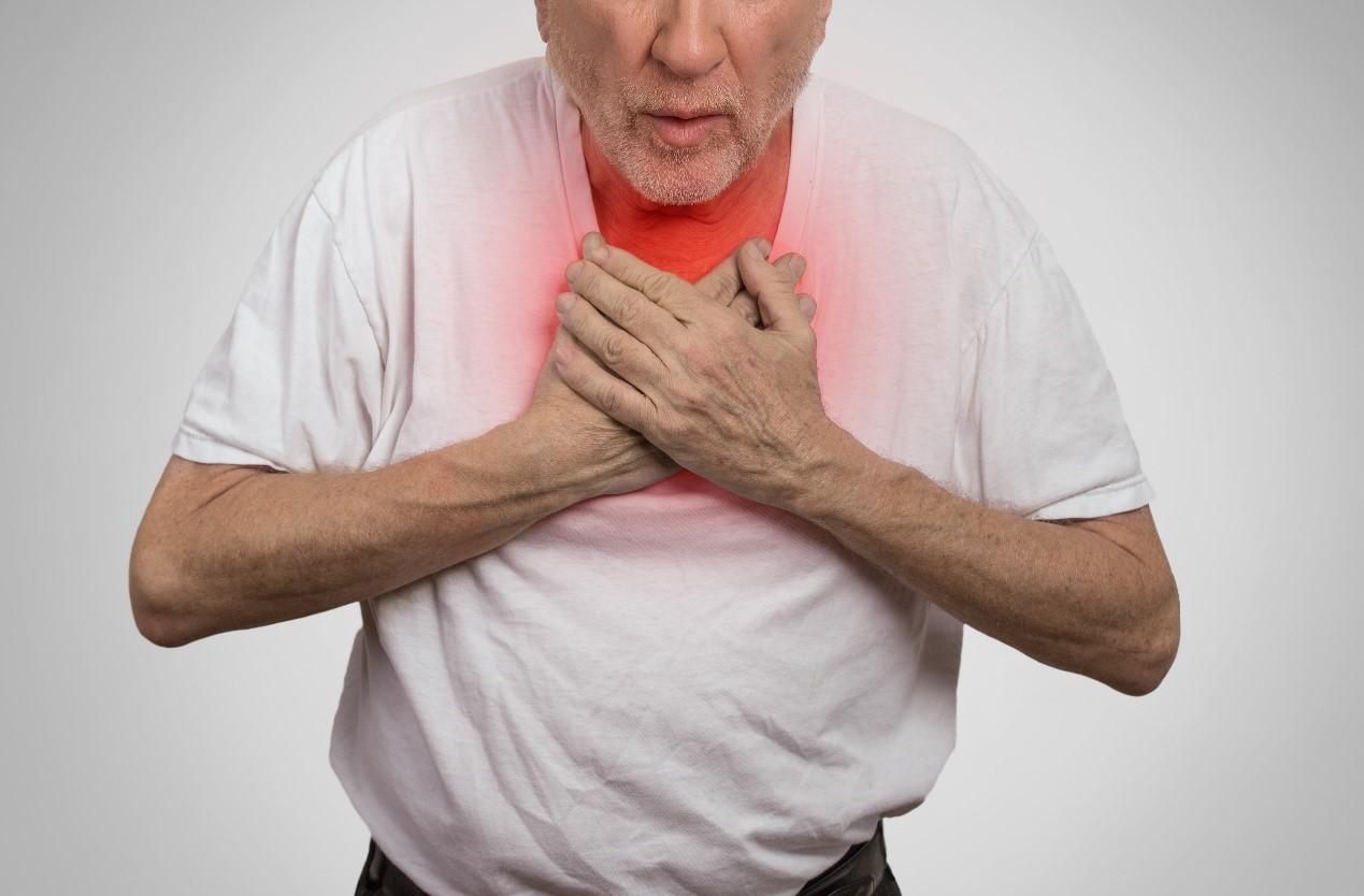 靜脈曲張小心併發症肺栓塞